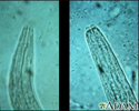 Hookworm - mouth of the organism