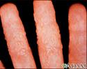 Dermatitis - reaction to tinea