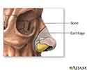 Nose surgery - series