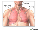 Pulmonary lobectomy  - series