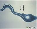 Lyme disease organism - Borrelia burgdorferi
