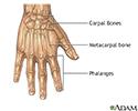 Repair of webbed fingers - series