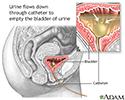 Bladder catheterization, female