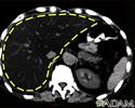 Fatty liver, CT scan
