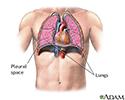 Pneumothorax - series - normal anatomy