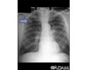 Adenocarcinoma - chest x-ray