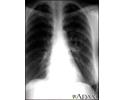 Coccidioidomycosis - chest X-ray