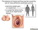 Absence of menstruation (amenorrhea)
