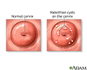 Nabothian cyst