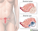 Ovarian growth worries