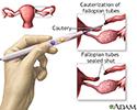 Tubal ligation