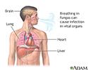 Disseminated coccidioidomycosis