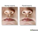 Nasal flaring
