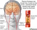 Atherosclerosis of internal carotid artery