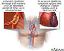 Acute vs. chronic conditions