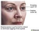 Blepharoplasty - series