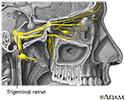 Cause of headaches