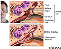 Middle ear infection (otitis media)