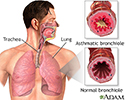 Asthmatic bronchiole and normal bronchiole