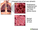COPD (chronic obstructive pulmonary disorder)