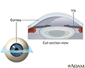 Lasik eye surgery - series