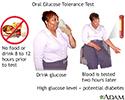 Oral glucose tolerance test