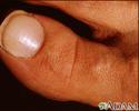 White nail syndrome