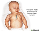 Infant open heart surgery