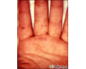 Hand, foot, and mouth disease on the hand