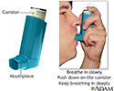 Inhaler medication administration