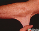 Ehlers-Danlos, hyperelasticity of the skin