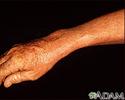 Lentigo, solar with erythema on the arm