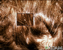 Lice, head - nits in the hair with close-up