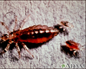 Body louse, female and larvae
