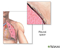 Chest tube insertion - series - Pleural cavity