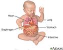 Diaphragmatic hernia repair - series