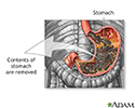 Gastric suction
