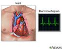 Electrocardiogram (ECG)