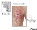 Incision for pleural tissue biopsy