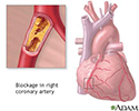 Coronary artery blockage
