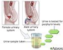 Porphyrin urine test