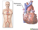 Pulmonary arteries