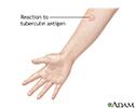 Tuberculin skin test