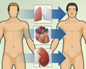 Heart transplant - overview